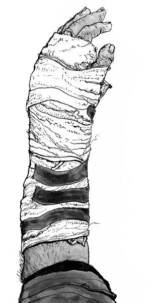 broken arm james tovey